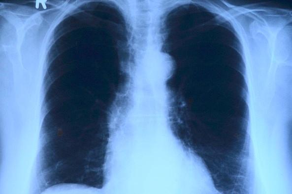 ВПсковской области подросла смертность оттуберкулёза
